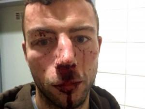 Jihlavský hokejista Michal Hlinka byl napaden. Skončil s otřesem mozku a zlomeným nosem v nemocnici.