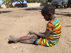 Počet případů cholery v Mosambiku se za den téměř zdvojnásobil