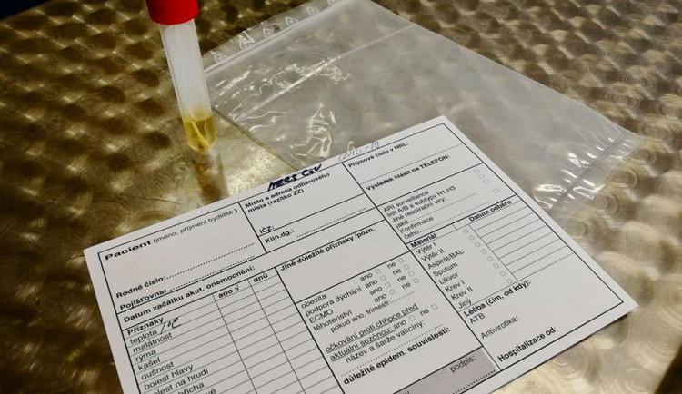 Česko má další dvě oběti koronaviru. Jednu hlásí Bulovka, další senior zemřel v domácím léčení